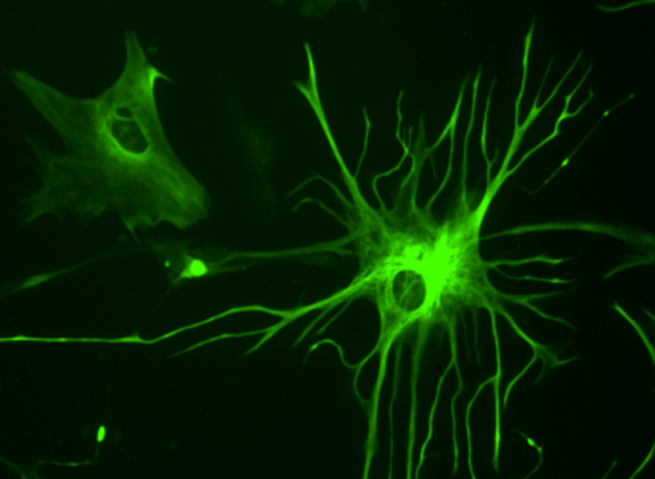 Brain cell, image via Wikipedia